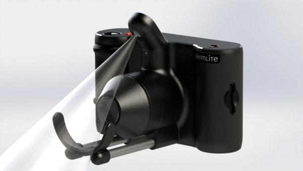 DermLite - MoleSafe camera